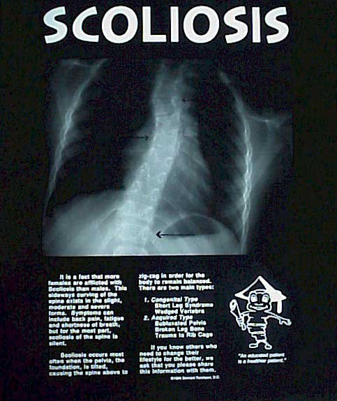 scoliosis spinesmarts xray x-ray xrays x-rays